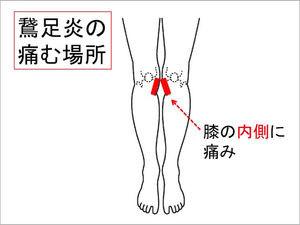 星空散歩治療院 鵞足炎