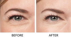 BOTOX-Before-After-2
