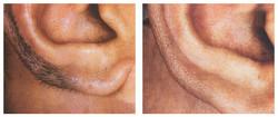 ears laser hair removal