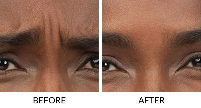 BOTOX-Before-After