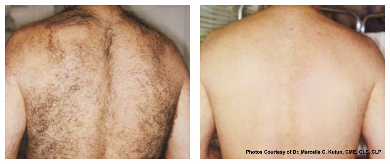 full back laser hair removal