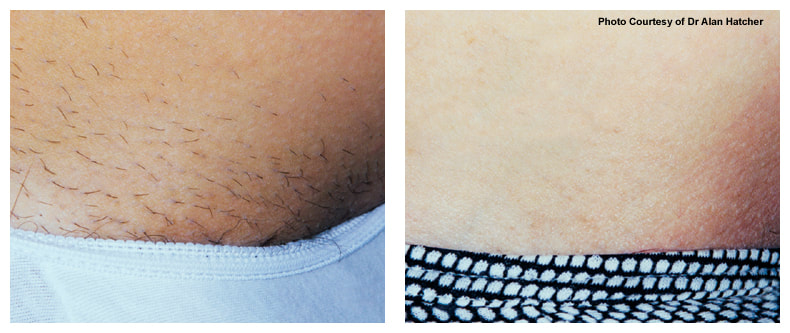 stomach hair removal