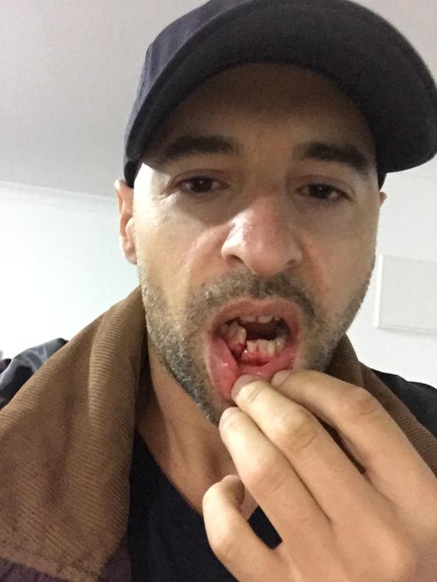 Broken Jaw