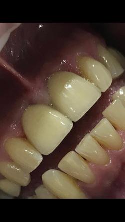 Implant Patient