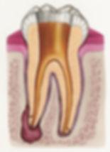 Tooth Cleaned 2 (CMYK).jpg