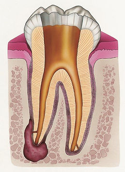 Tooth Cleaned 2 (CMYK).jpg
