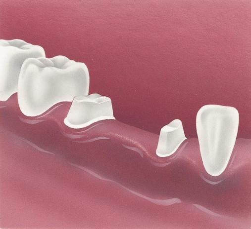 2. The teeth are prepared.jpg