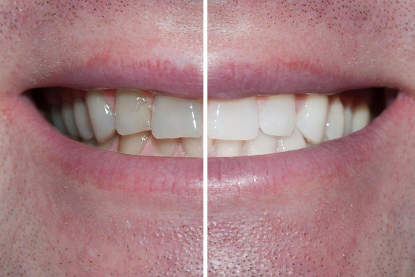 Tooth Whitening - Before & After.jpg