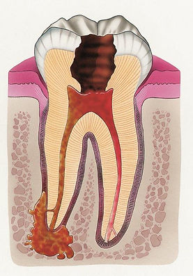 Infected Tooth 1 (CMYK).jpg
