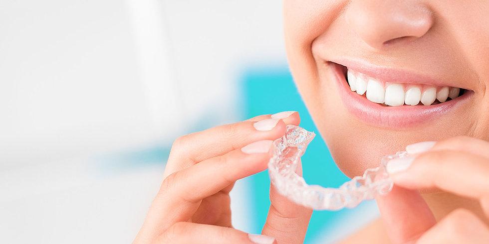 dental-patient-wearing-invisalign-1.jpg
