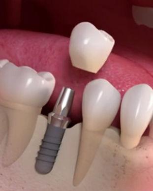 dental-implant-chiangmai-thailand.jpg