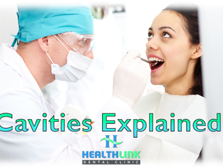 Cavities Explained