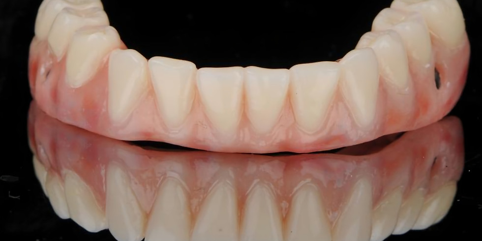 Abutment Selection for Implant-supported Fixed Dental Prostheses