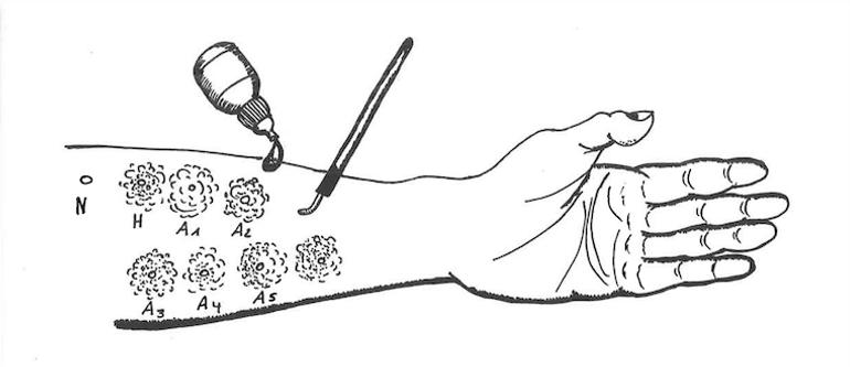Haut Prick Test Arm Hausstaubmilbenaller