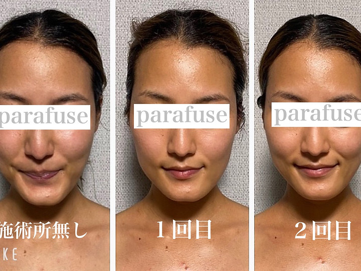 Before/After|PARAGUSE.脳洗浄