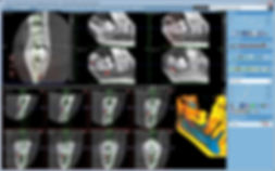 CT retin zub.jpg