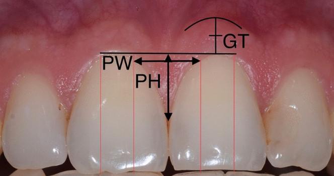 Pastika dásní
