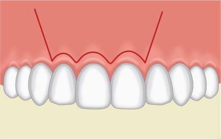 Plastika dásně