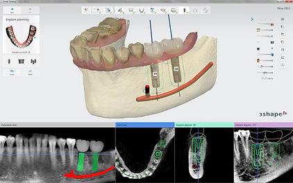 implantstudio.jpg