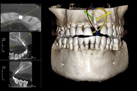 3D - CT (CBCT technologie)