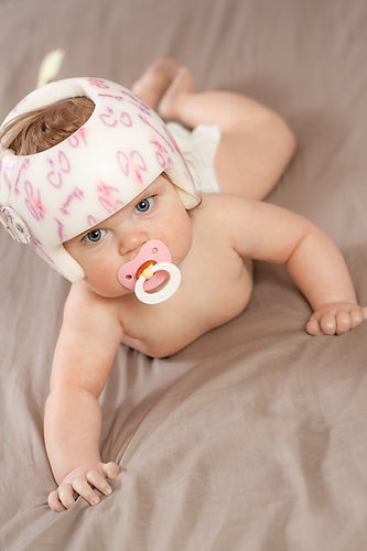 Child wearing a helmet due to plagiocephaly while crawling_edited.jpg