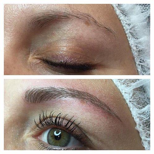 What is Microblading2