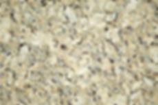 Victor Granite Giallo Napoleon CL b