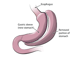 Removed portion of the stomach