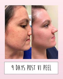 9 Days Post VI Peel