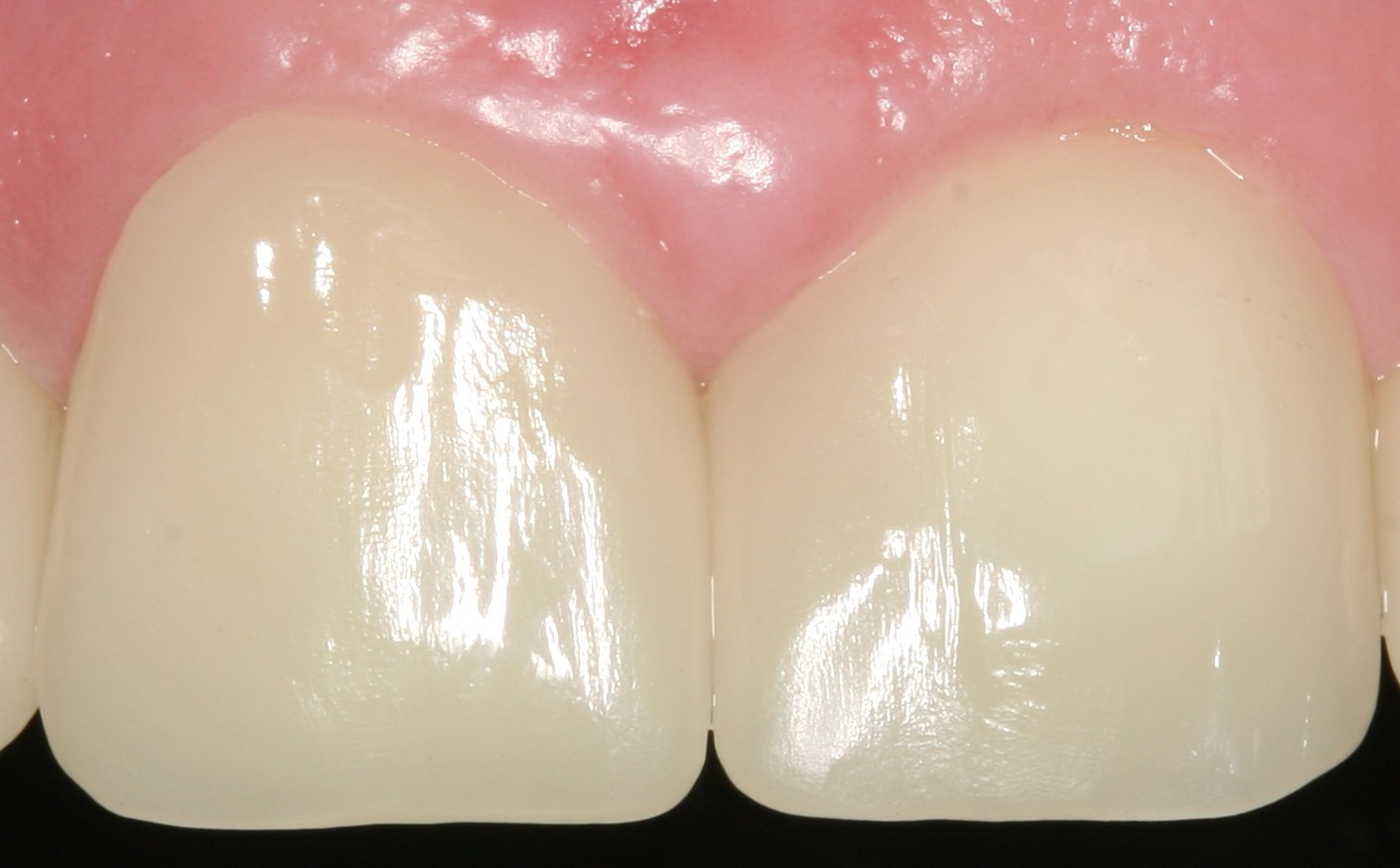 Porcelain crowns After treatment.JPG
