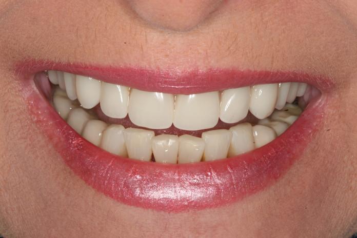 Denture after treatment.JPG