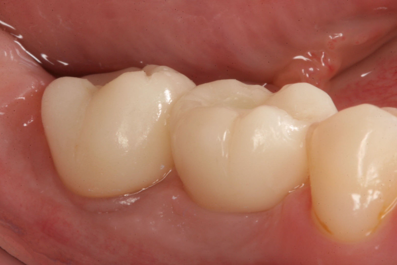 Porcelain implant crowns After tretment.