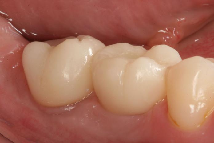 Porcelain implant crowns After tretment.