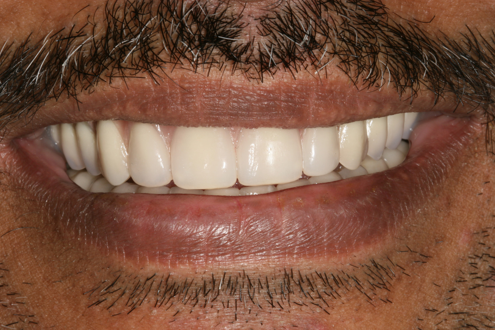 implant supported denture After treatmen