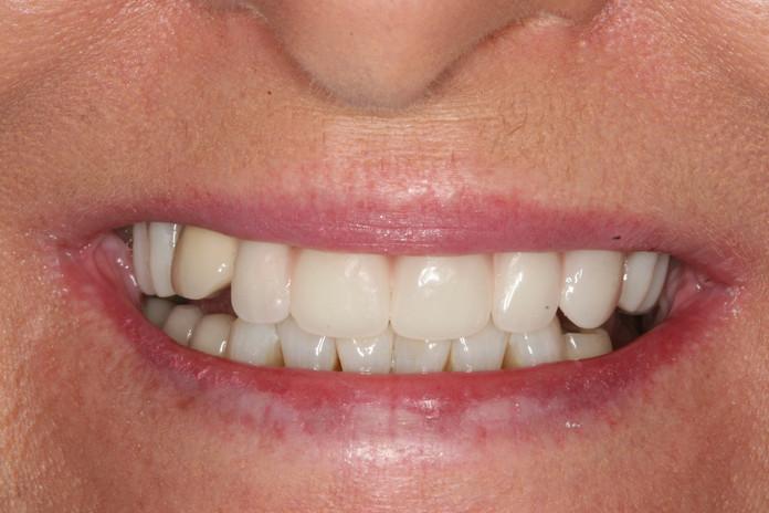 Denture before treatment.JPG