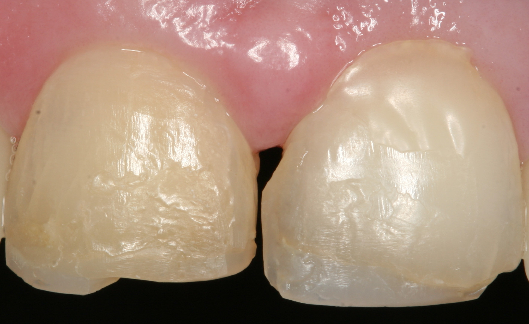 Porcelain crowns before treatment.JPG