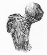 Sketch of the head of the femur