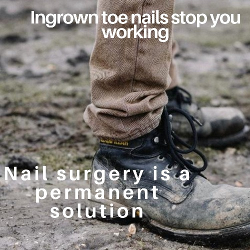 Ingrown toenail removal and nail surgery at Deva Podiatry Chester