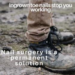 Ingrown toenail removal and nail surgery at Deva Podiatry Chester