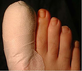 nail surgery post operation private chiropodist in my area Deva podiatry chiropody