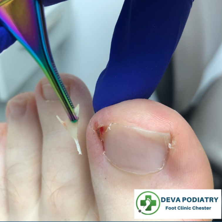 Ingrown Toenail Removal Footcare clinic Chester
