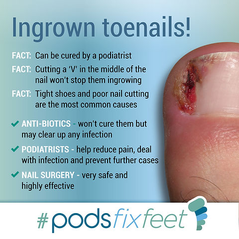 Infected Toenail and Ingrown Toenail information regarding Podiatrist ability to fix