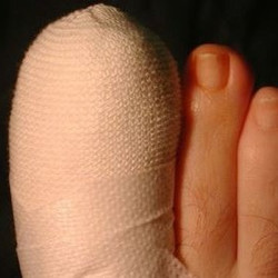 Absolute Footcare Dedication from a best practice podiatry clinic Chester