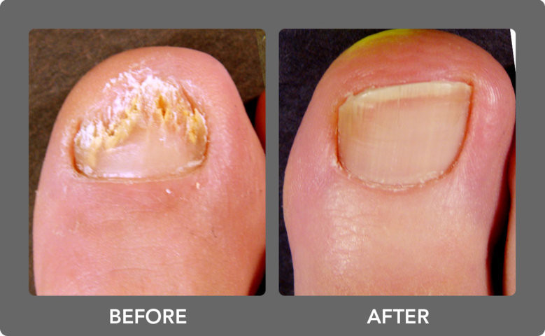 Images of fungal toenail infection before and after at Deva Podiatry approved clinic for Lacuna Method Fungal Nail Treatment Chester