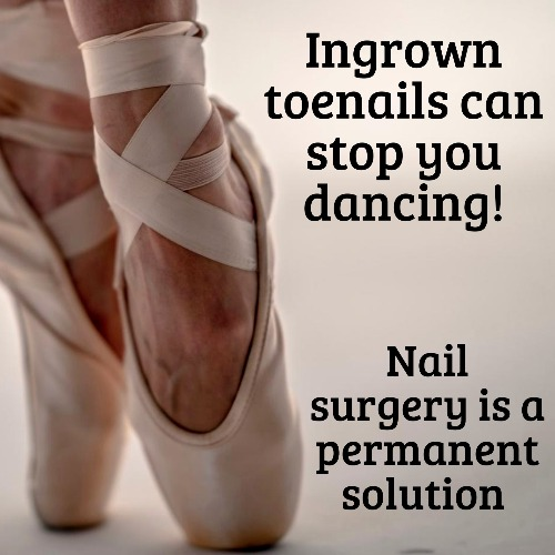 Ingrown toenail removal at Deva Podiatry