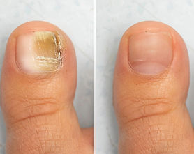 Lacuna Method fungal nail treatment available at Deva Podiatry Foot Health Clinic private chiropodist chester podiatrist chester