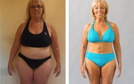 Cindy, 50, lost 70lbs
