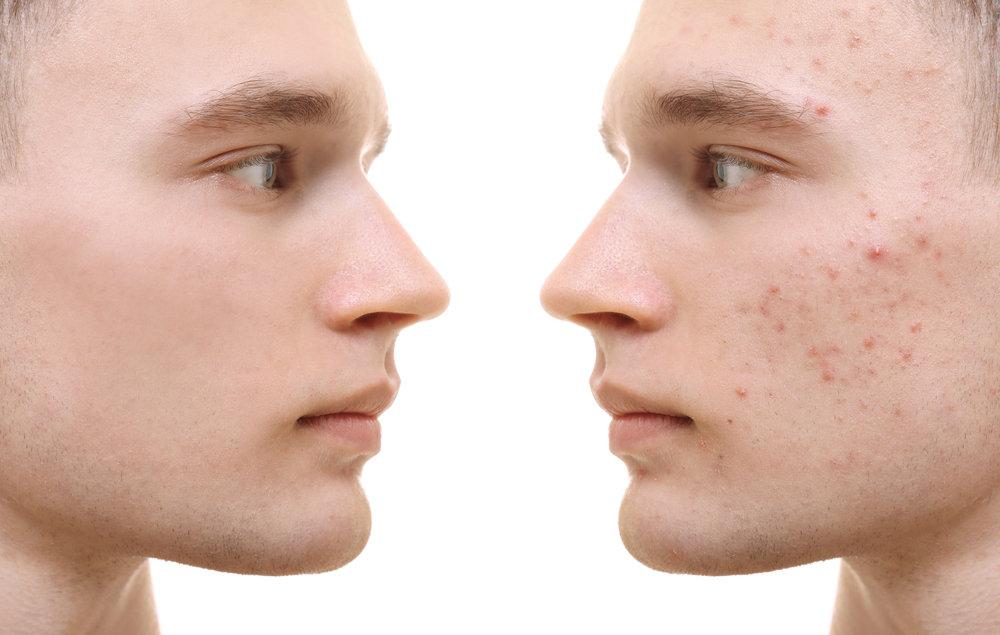 Aknebehandlung Skin Clear