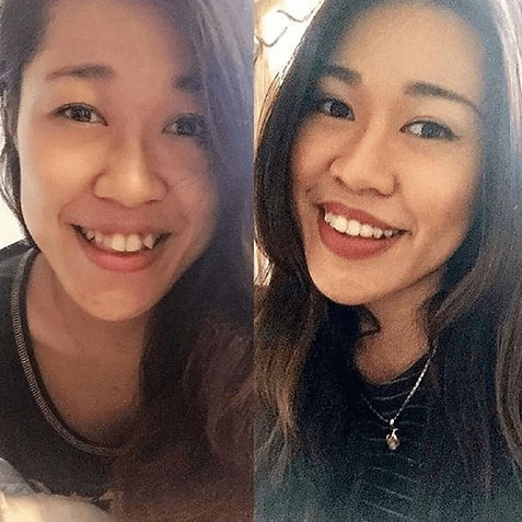 Invisalign before after B.jpg
