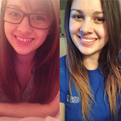 Invisalign before after C.png